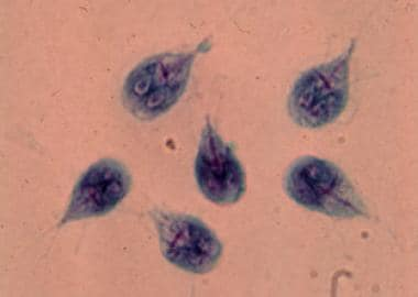 giardia elisa positive after treatment