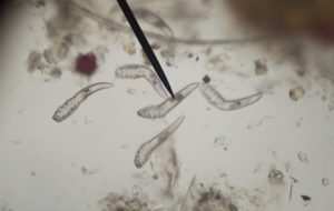 12 biztos jele annak, hogy parazita van a testedben