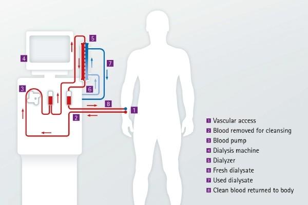 hogy mennek a körféregek a kezelés során anti humán paraziták