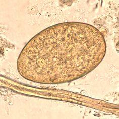 echinostome paraziták