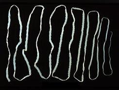 a paraziták jellemzői paraziták a chum lazacból
