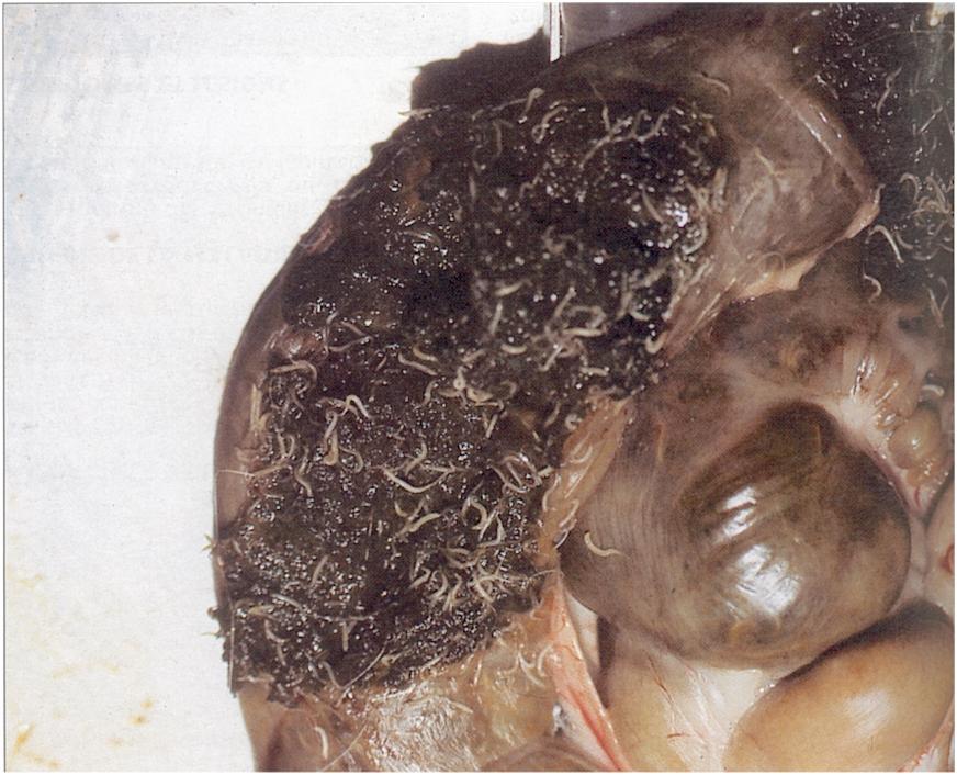 pinworm féreg kezelés