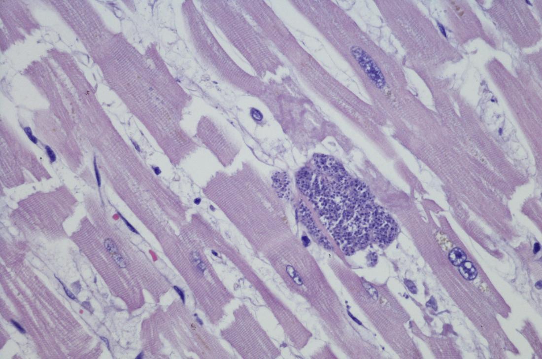 ölni toxoplasmosis parazitákat
