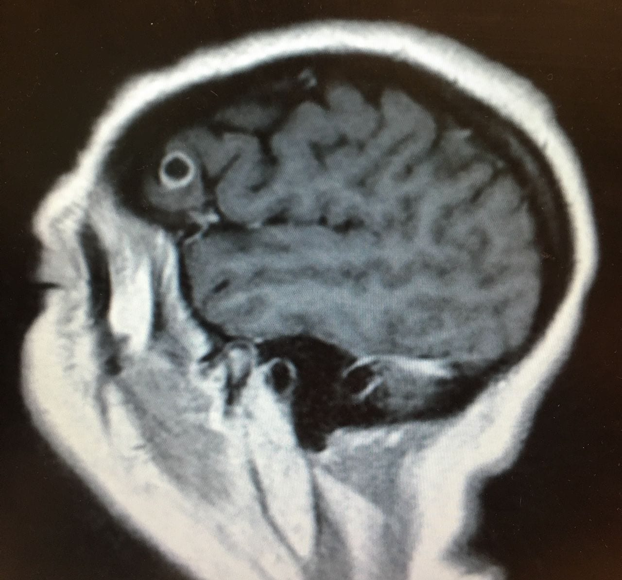 Azt hitték, daganat van az agyában, valami rémisztőbbet találtak