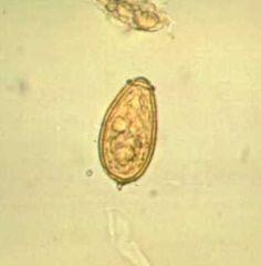 Schistosomiasis (vérmétely fertőzés) - EgészségKalauz